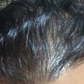 hair transplant surgery top head