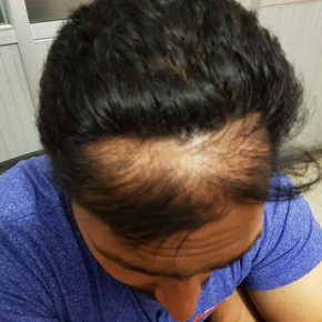 before pic of hair transplant surgery top head
