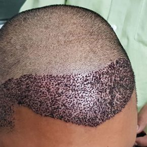 How head looks after FUE hair transplant top side view
