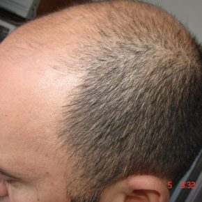 before pic of hair transplant surgery right side