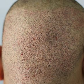 How head looks after FUE hair transplant back side view