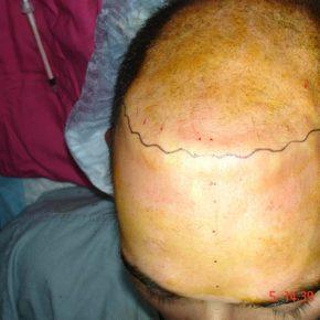 prepration for FUE hair transpalnt surgery
