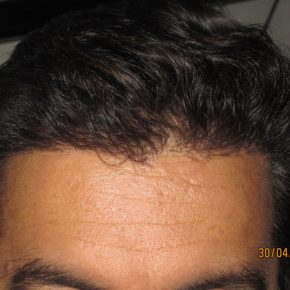 successful FUE hair transplant rsults