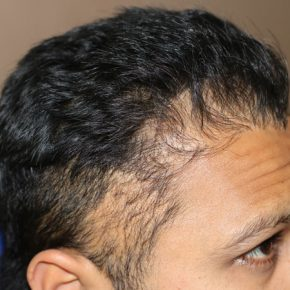 before pic of hair transplant surgery left side