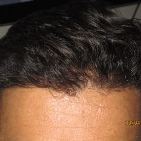 How head looks after FUE hair transplant