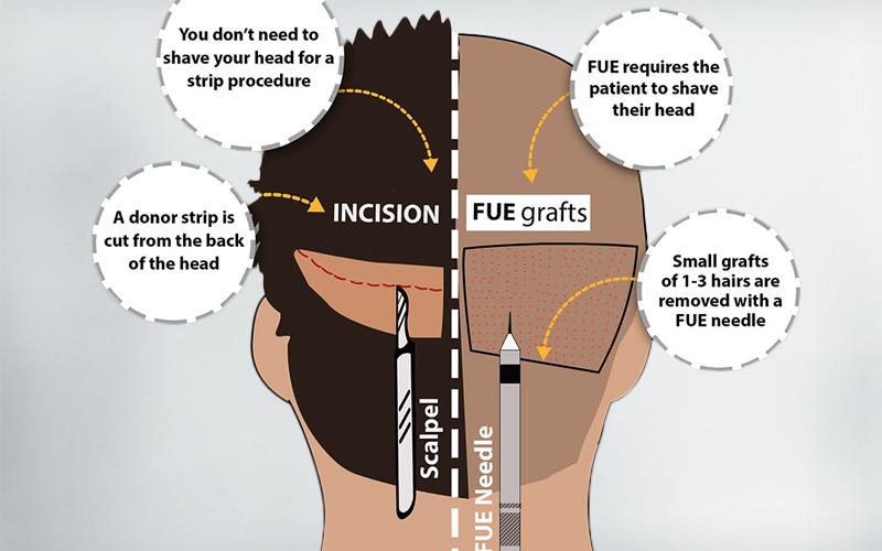 fue, fut hair transplant