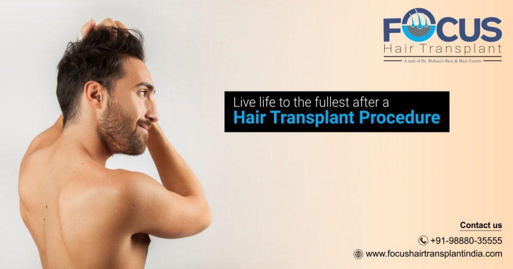 hair transplant surgery