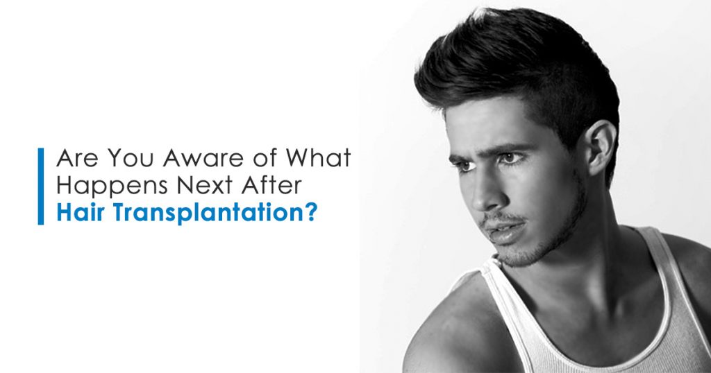 Are You Aware of What Happens Next After Hair Transplantation?