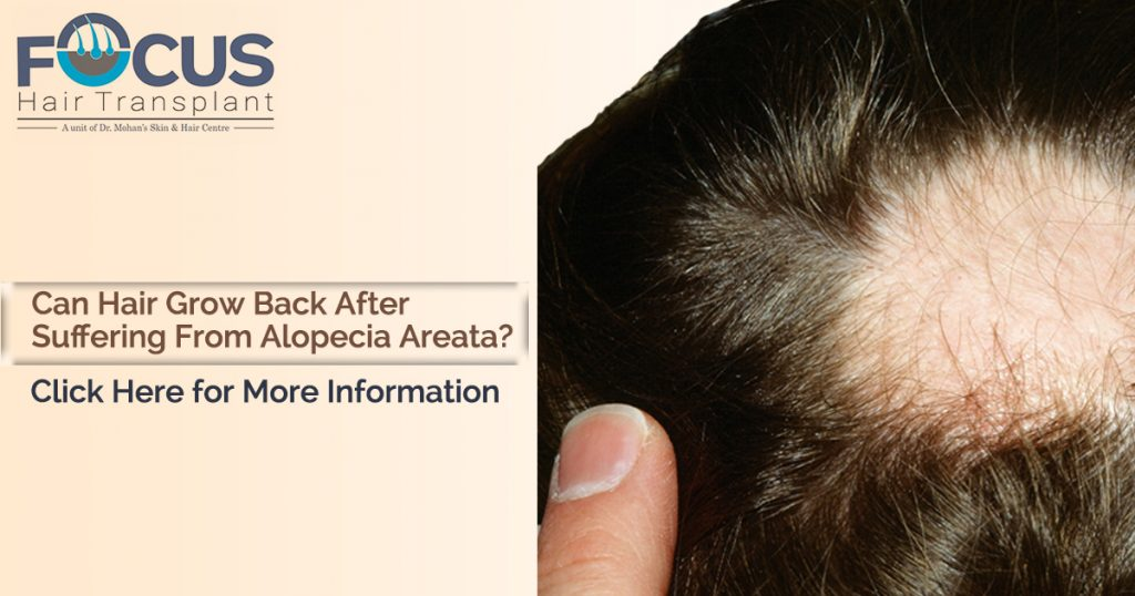 Can hair grow back after suffering from Alopecia Areata?