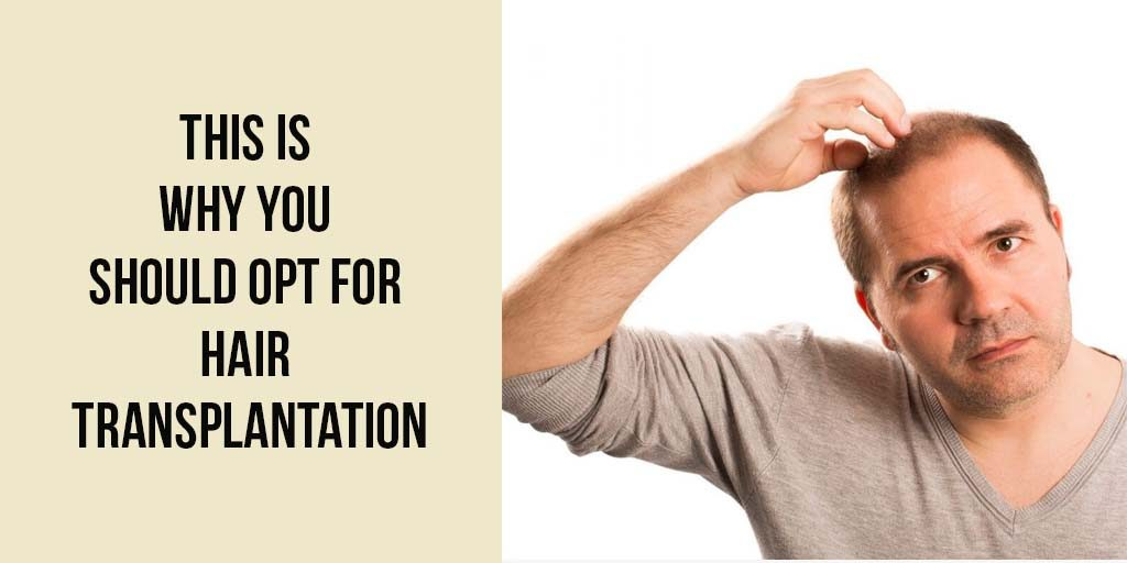 This is Why You Should Opt For Hair Transplantation