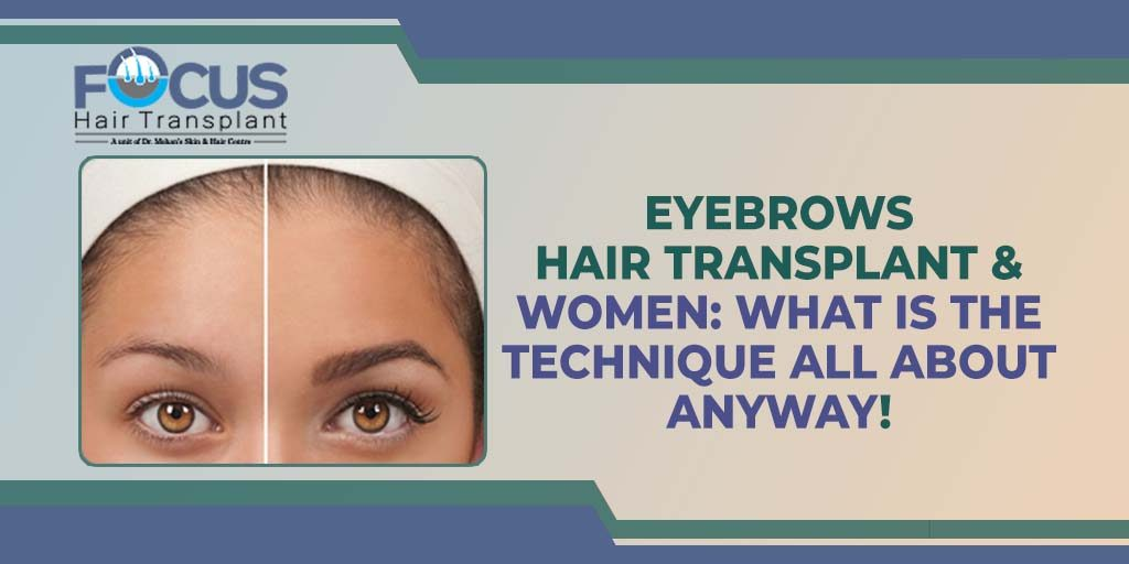 Eyebrows Hair Transplant & Women: What is the Technique All About Anyway!