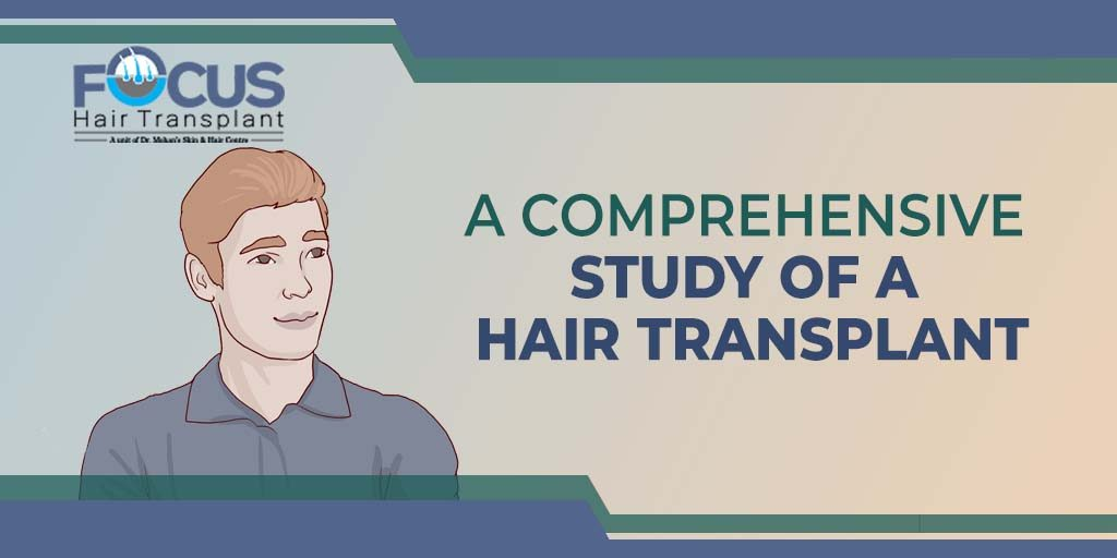A Comprehensive Study of a Hair Transplant