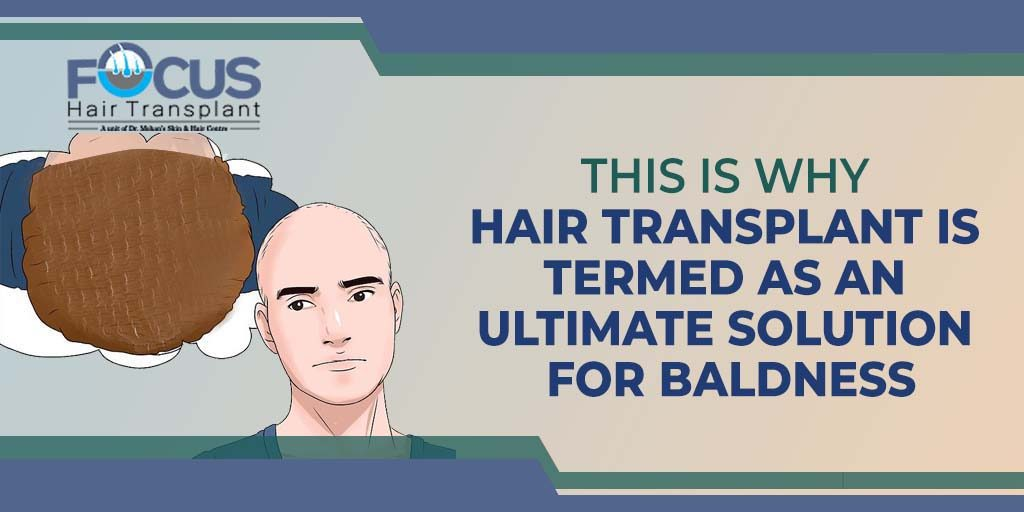 This is Why Hair Transplant is Termed as An Ultimate Solution For Baldness