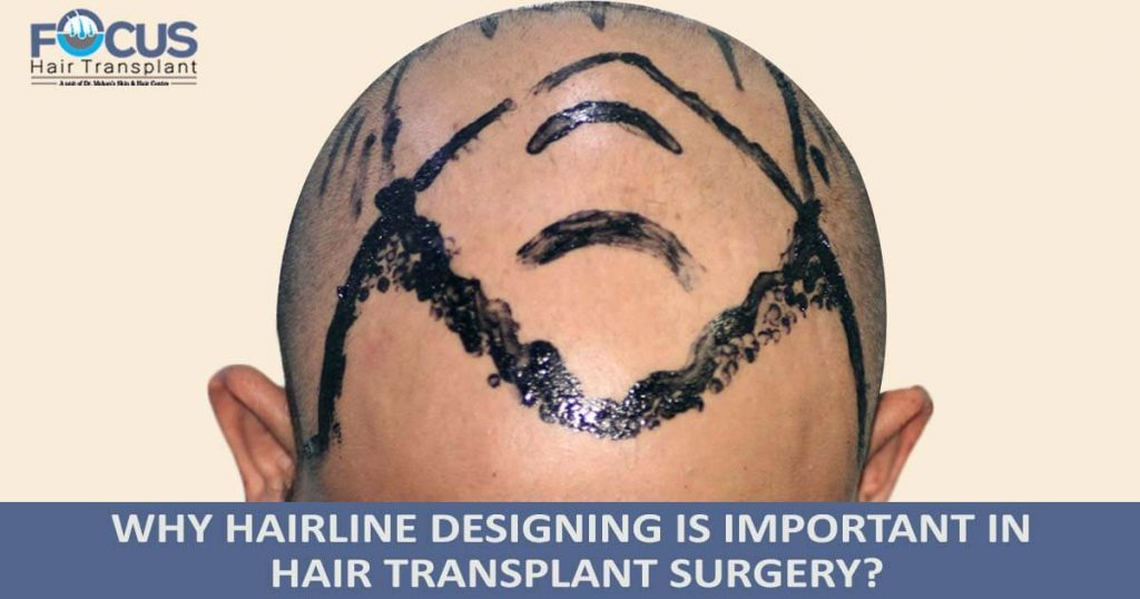 Why hairline designing is important in hair transplant surgery?