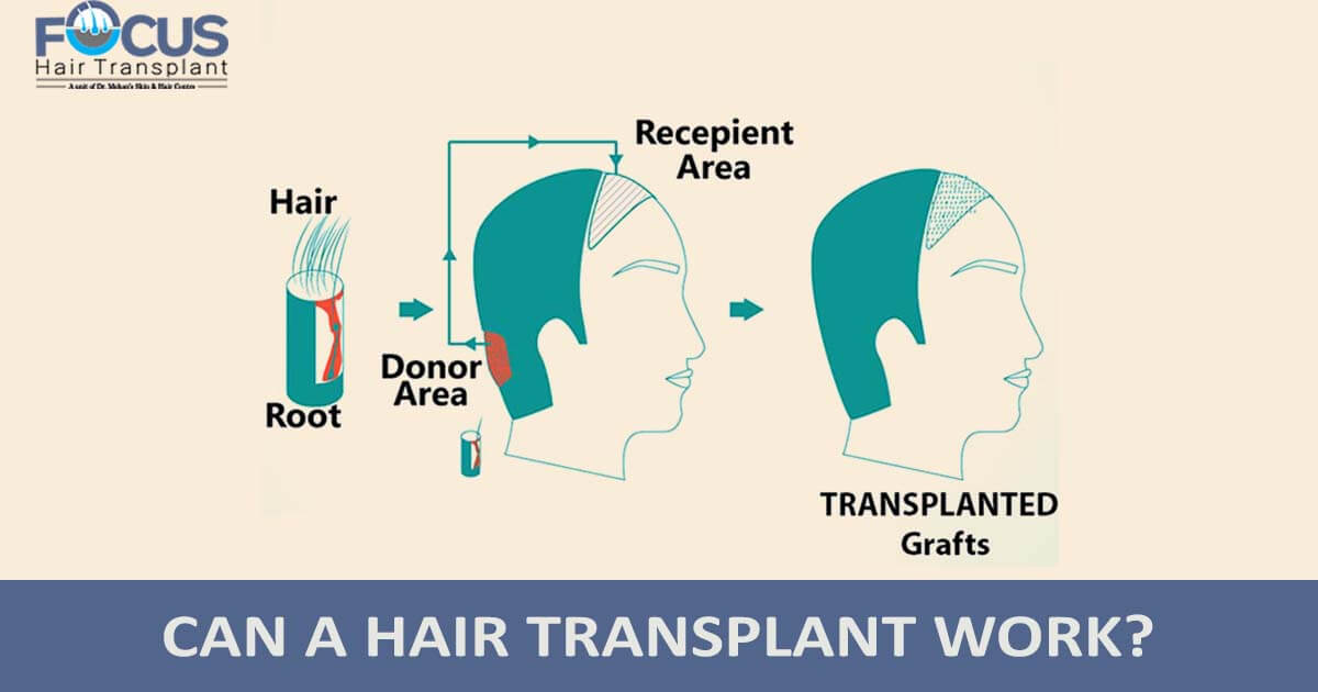 Can a Hair Transplant Work