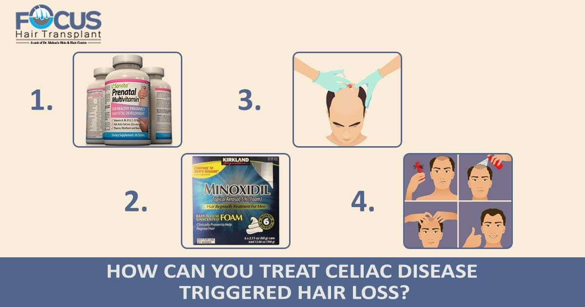 How Can You Treat Celiac Disease Triggered Hair Loss