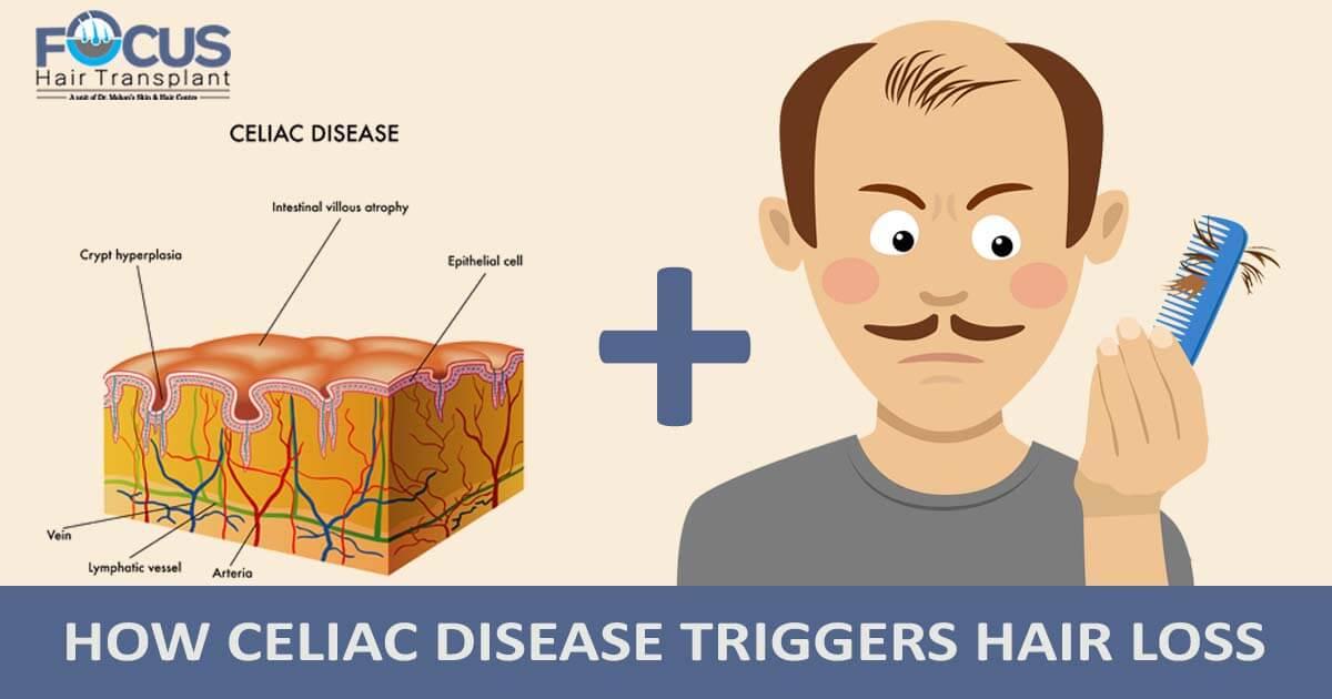 How Celiac Disease Triggers Hair Loss