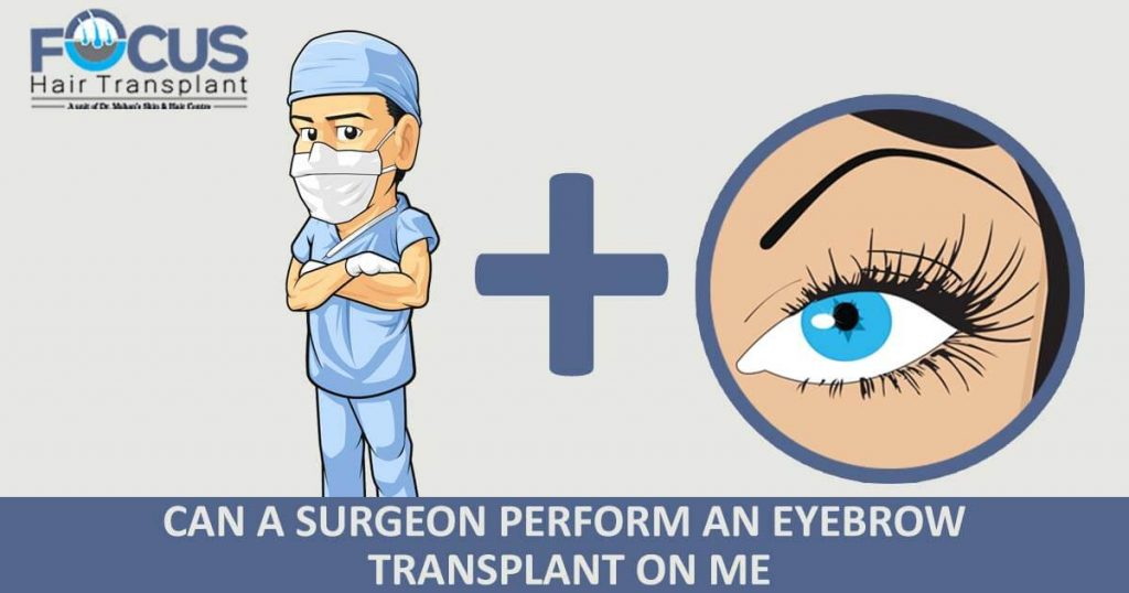 Can a Surgeon Perform An Eyebrow Transplant on Me?