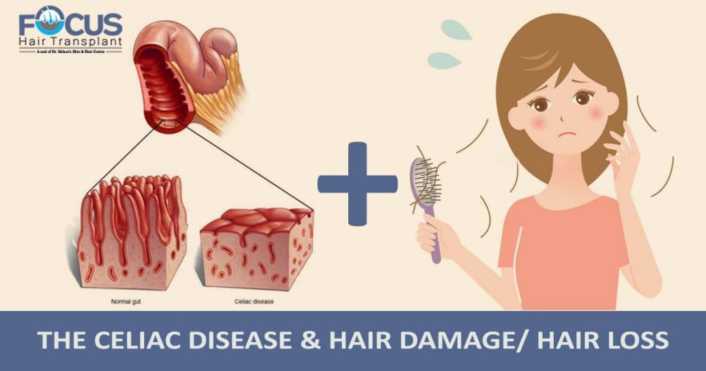 The Celiac Disease & Hair Damage/ Hair Loss
