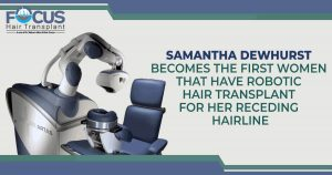 Samantha Dewhurst Becomes The First Women That Have Robotic Hair Transplant For Her Receding Hairline