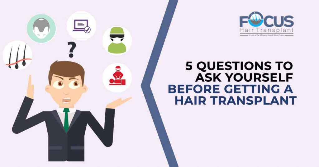 5 Questions to Ask Yourself Before Getting a Hair Transplant