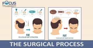 The surgical process