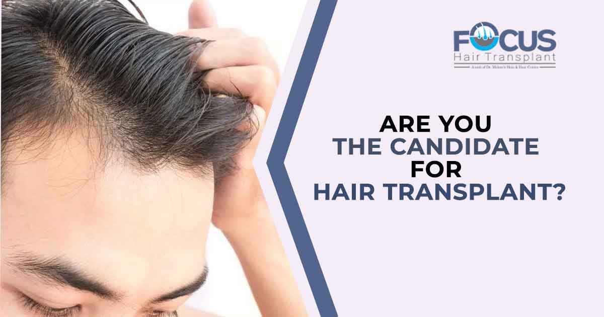 Are you the candidate for hair transplant?