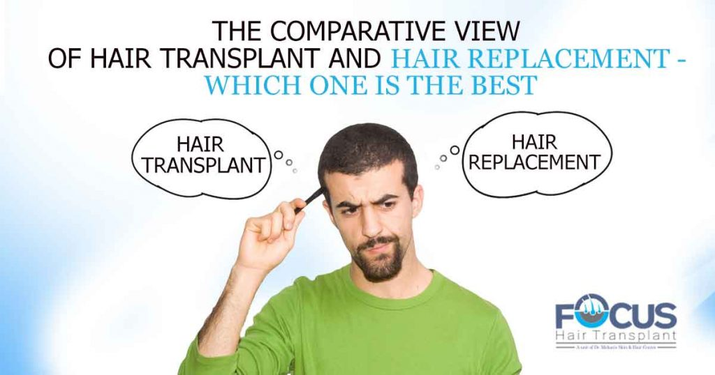 The-comparative-view-of-hair-transplant-and-hair-replacement--which-one-is-the-best