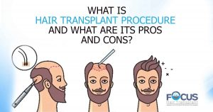 What is Hair Transplant Procedure and what are its pros and cons?