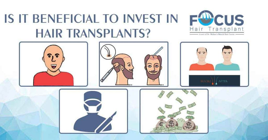 Is it beneficial to invest in Hair Transplants?