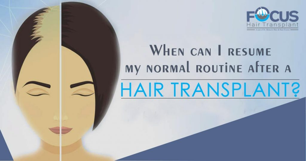 When-can-I-resume-my-normal-routine-after-a-Hair-Transplant-1