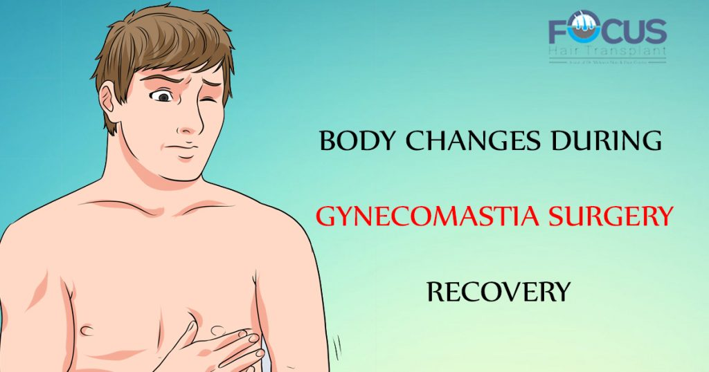Body Changes during Gynecomastia Surgery Recovery