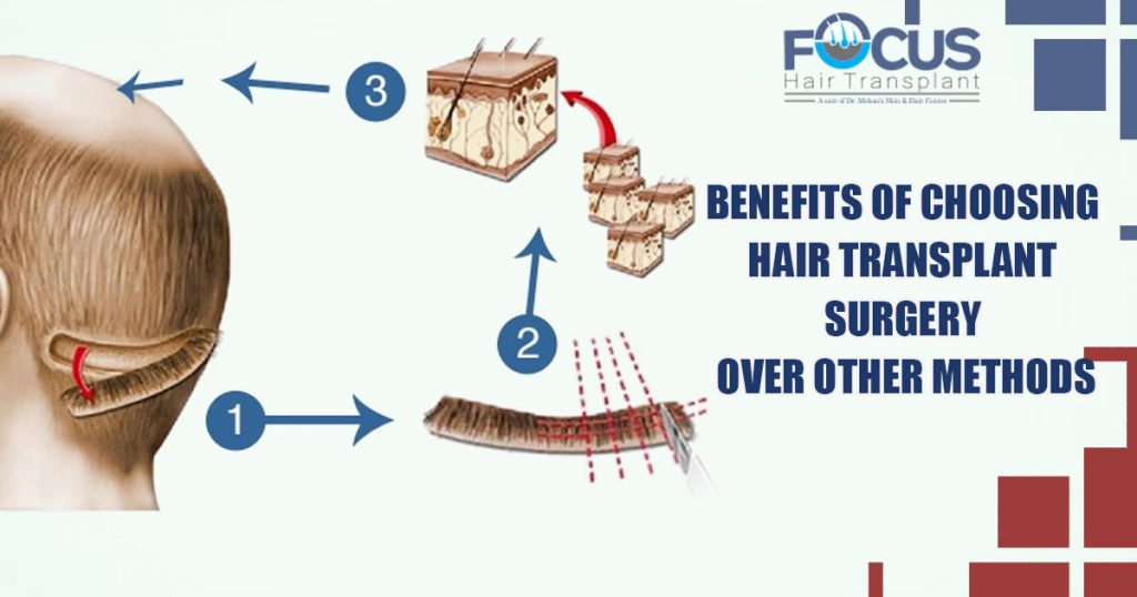 Benefits of Choosing Hair Transplant surgery over other methods
