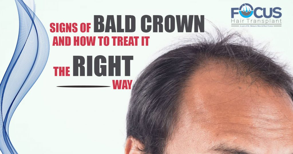 Signs of bald Crown And How to Treat it the right way