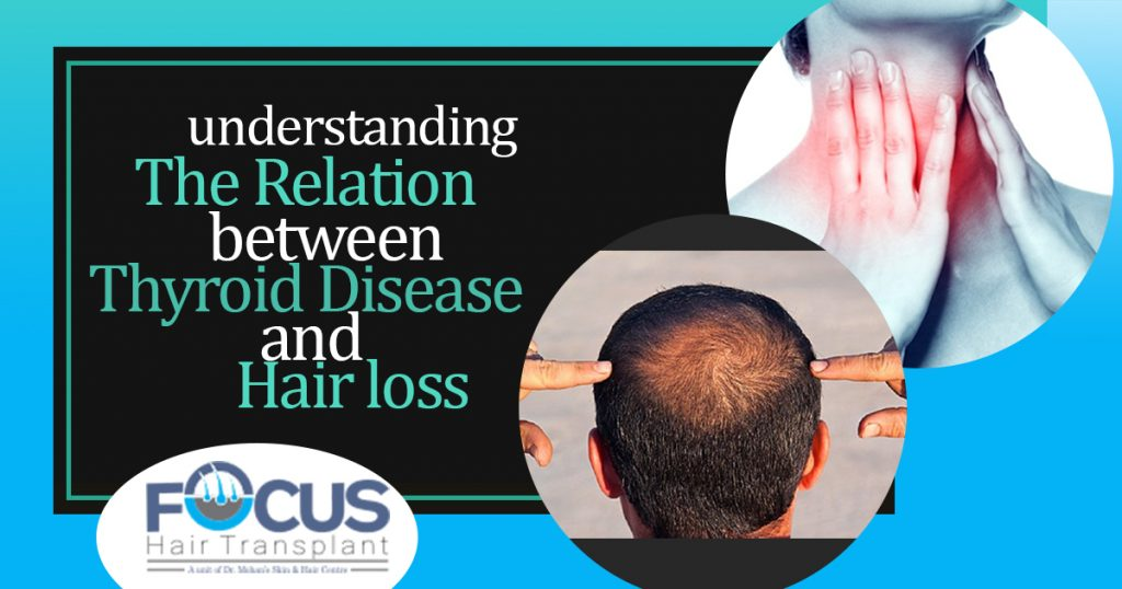 understanding The Relation between thyroid Disease And Hair loss