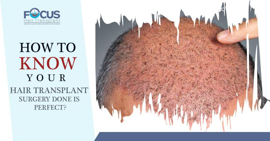 How to know your hair transplant surgery done is perfect