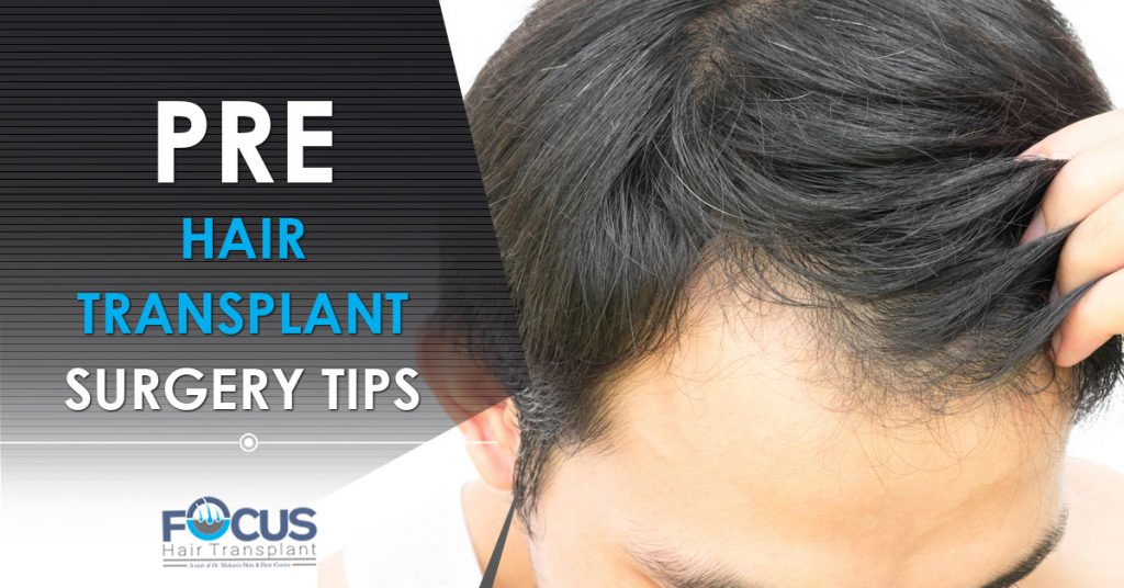 Pre hair Transplant surgery tips