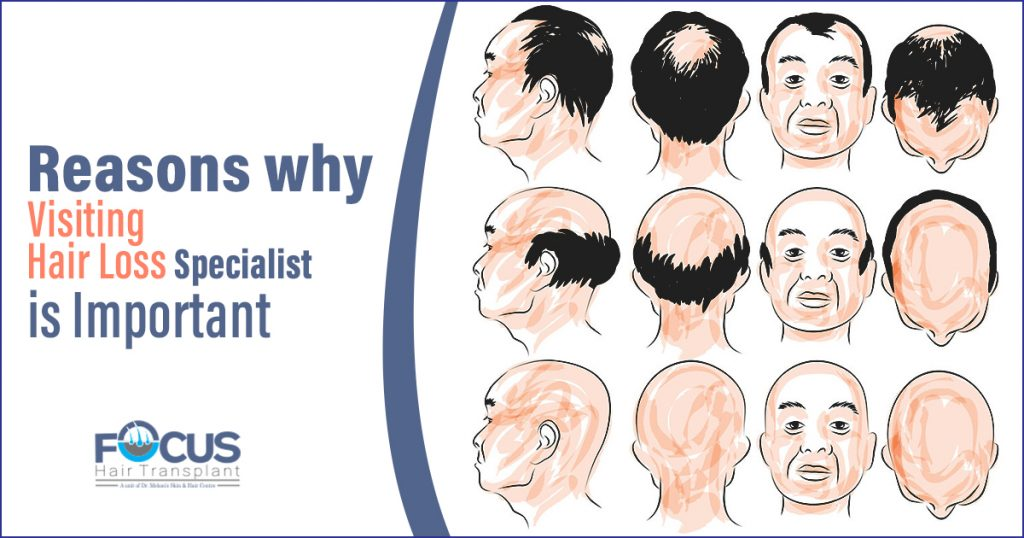 Reasons why visiting hair loss specialist is important