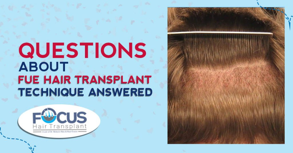 Questions About FUE hair Transplant Technique Answered