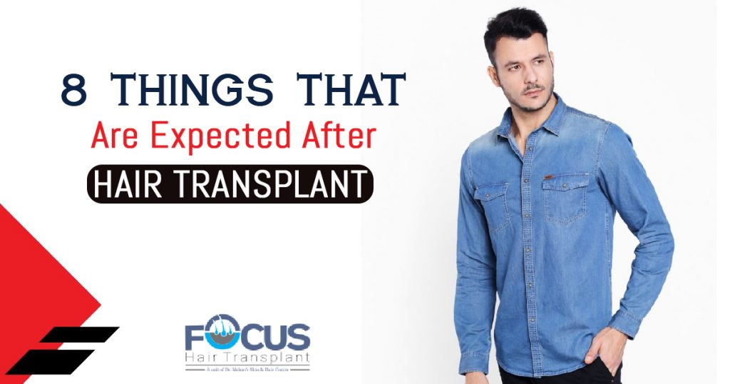 8 Things That Are Expected After Hair Transplant