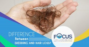 Difference Between Shedding and Hair Loss