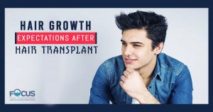 hair growth expectations after hair transplant