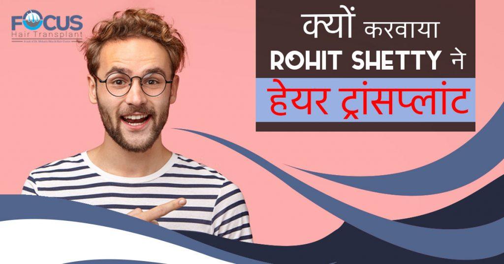 क्यों करवाया Rohit Shetty ने हेयर ट्रांसप्लांट