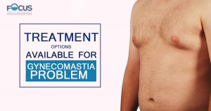 Treatment options available for Gynecomastia Problem