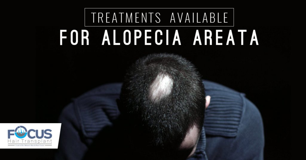 Treatments available for Alopecia Areata