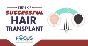 Steps of successful hair transplant