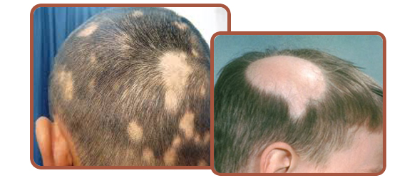 Hair Fall & Alopecia Areata- Don't wait for a bald patch