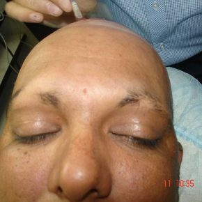 during-treatment-3