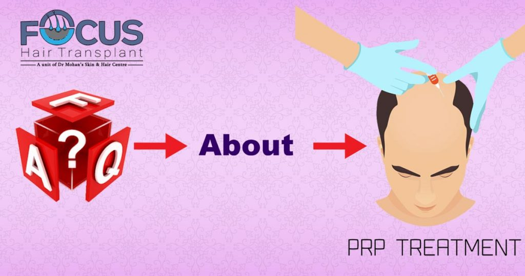 FAQ on the PRP Treatment