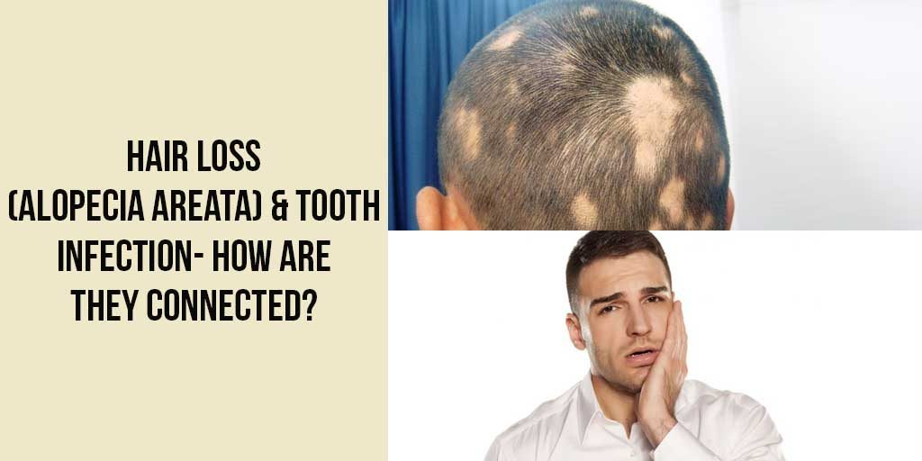 Hair Loss (Alopecia Areata) & Tooth Infection- How are they Connected?